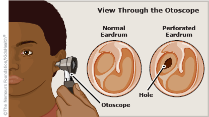 A to Z: Eardrum, Perforated - Connecticut Children's Medical Center