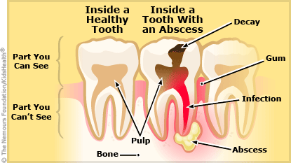 dental abscess illustration