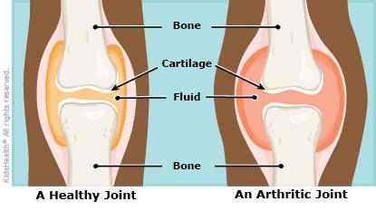 a to z: juvenile idiopathic arthritis (jia) - connecticut, Skeleton