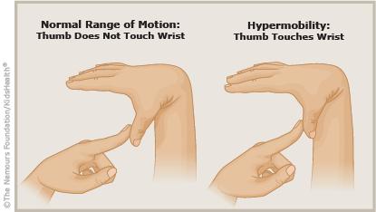 Резултат с изображение за hypermobility joint