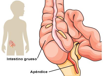 en que parte del cuerpo se encuentra la apendicitis